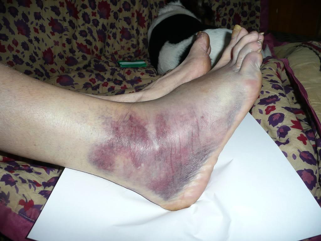 broken foot, ankle